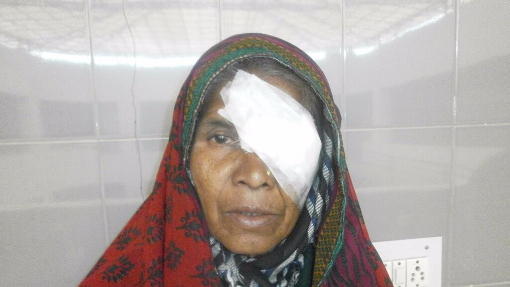 Gift sight with a cataract surgery
