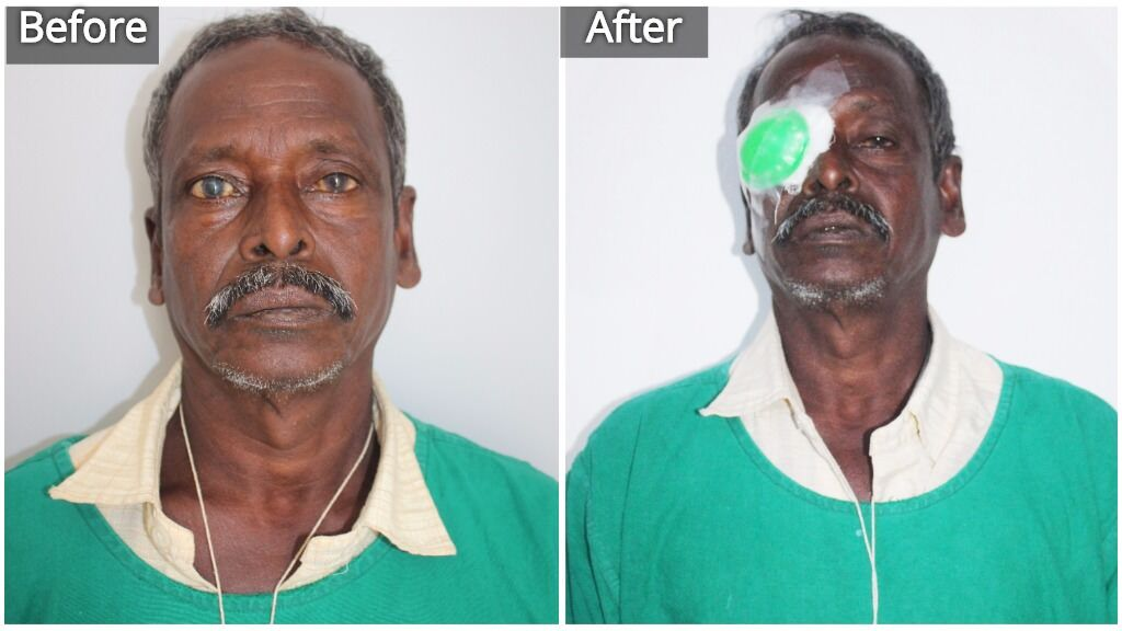Restore eyesight by sponsoring a cataract surgery