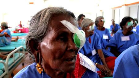 Sponsor part cost of a cataract surgery